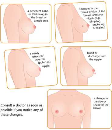 Ask Your Pharmacist Frequently Asked Questions On Breast Cancer